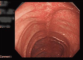 潰瘍性大腸炎縦走潰瘍