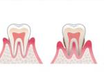 歯医者歯石除去とSRP